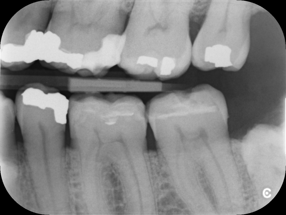 Example of an Intra-oral x-ray