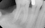 Molar Tooth with infection in the bone - dark area