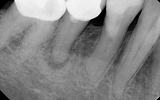 Premolar Tooth with infection in the bone - dark area