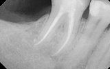 Molar Tooth with infection in the bone - dark area - Root filled