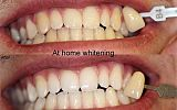 At Home Tooth Whitening