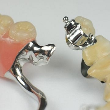Precision attachments/Dentures